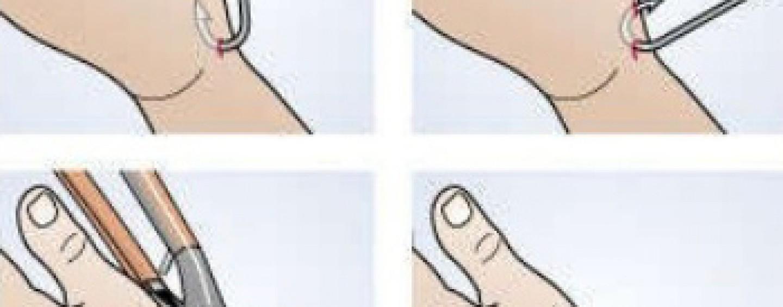 ¿Cómo sacar un anzuelo clavado en la mano?